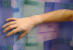 Hand Therapy Kinesio Taping