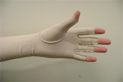 Hand Therapy  Compression Garment